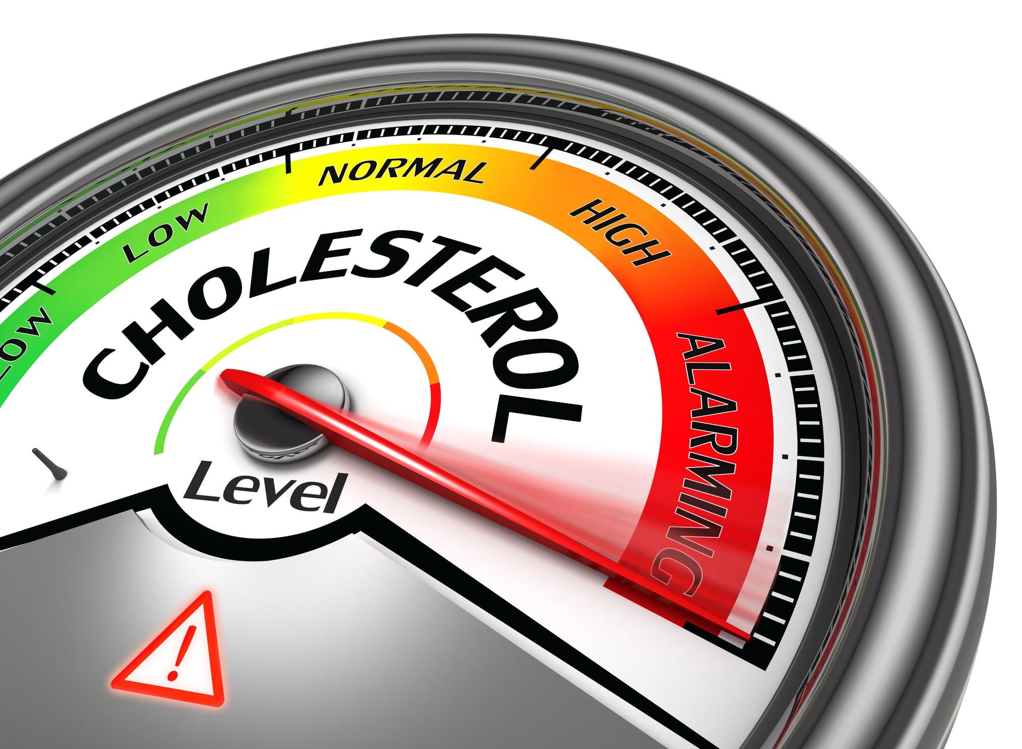 Testing cholesterol